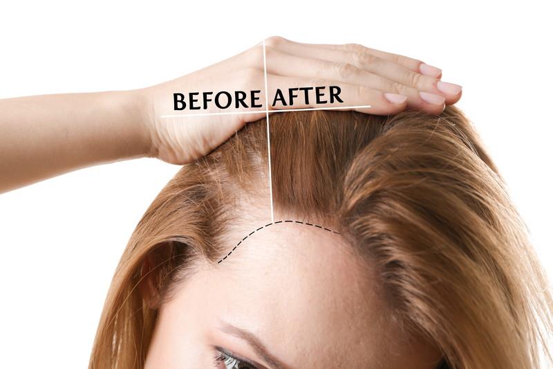 治療前と治療後